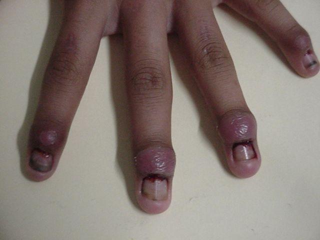 La enfermedad de las uñas en las manos el hongo